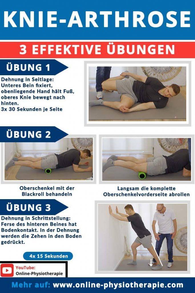 Knie-Arthrose Übungen, Gonarthrose, Schmerzen im Knie
