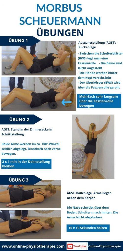 Morbus-Scheuermann-Übungen