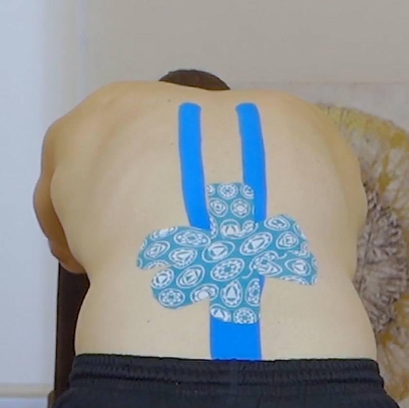 Rückentape-anlegen