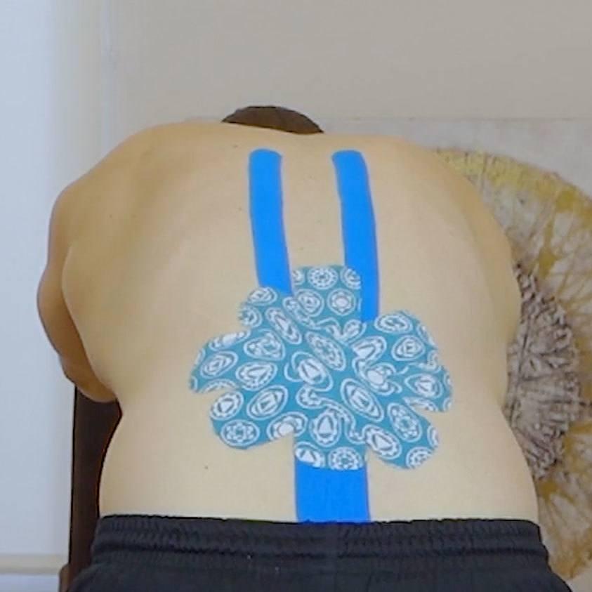 Tapen-bei-Rückenschmerzen