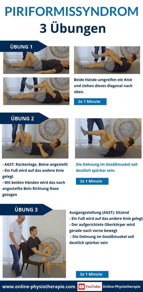 Piriformis-Syndrom Übungen