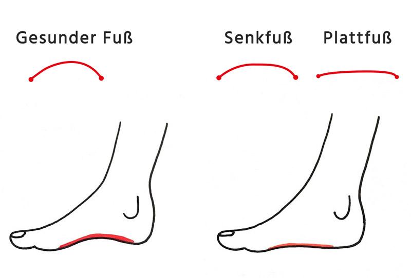 Das Bild zeigt einen gesunden Fuß im Vergleich zu einem Senkfuß und einem Plattfuß
